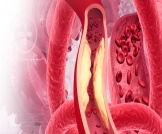علاج ضيق الشرايين بدون جراحة