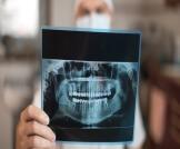 أشعة الأسنان للحامل