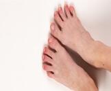 تورم أصابع القدم في الشتاء