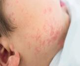 حساسية الوجه عند الرضع