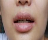 جفاف الفم في الصباح