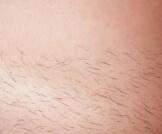 سبب نمو الشعر بسرعة بعد إزالته: ما هو؟