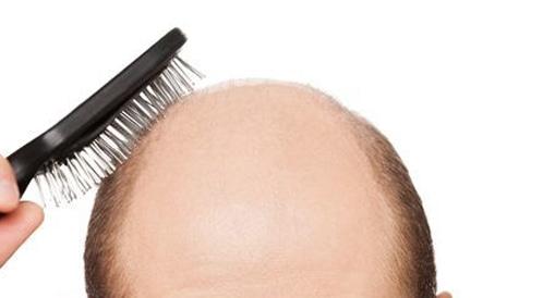عند علاج تساقط الشعر, توجهوا للأخصائي!