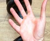 مسمار اللحم في اليد: دليلك الشامل