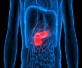 ما هي أخطر مراحل سرطان البنكرياس