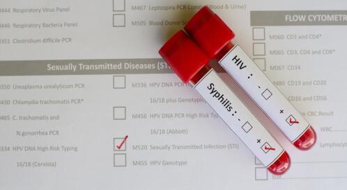 هل مرض الزهري هو الإيدز