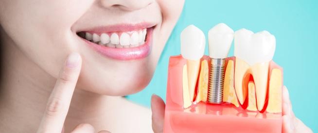 تجميل الأسنان: اهم الطرق
