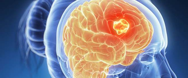 سرطان الدماغ،اعراض سرطان الدماغ،علاج سرطان الدماغ