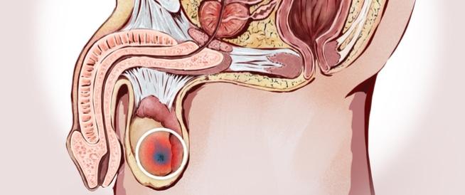 سرطان الخصية،اعراض سرطان الخصية