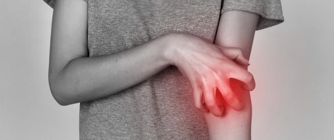 الجرب الاعراض، الاسباب والعلاج