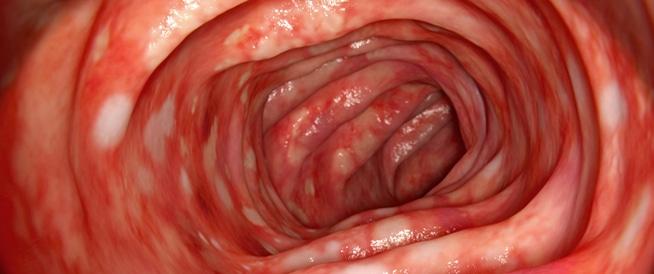 التهاب القولون،اعراض وعلاج التهاب القولون