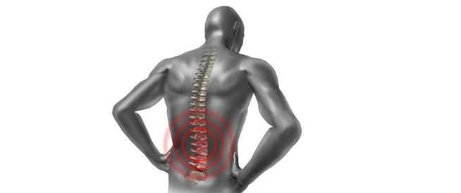 الم الظهر: أسباب وأعراض وطرق علاج