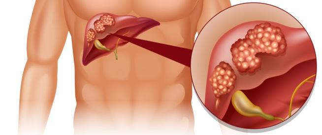 سرطان الكبد، اسباب وعلاج سرطان الكبد