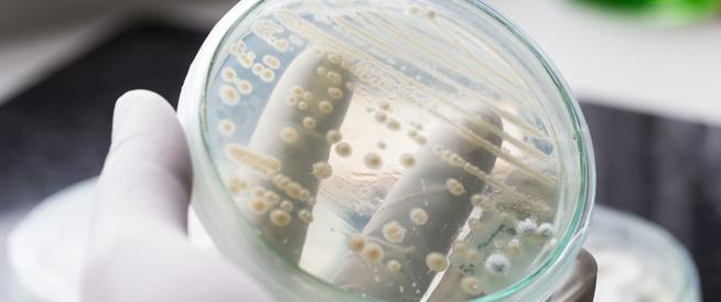 فطريات المهبل، أسباب وعلاج فطريات المهبل
