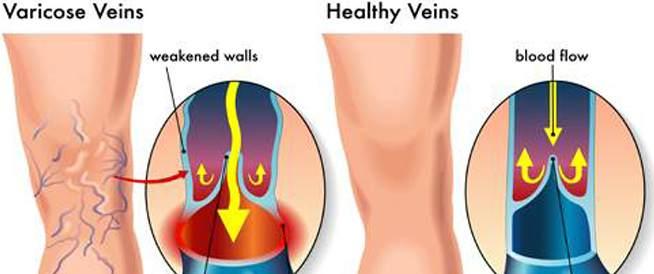 القدم دوالي الحمل في