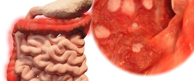 التهاب القولون التقرحي،التهاب المستقيم