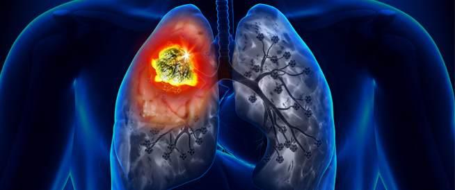 سرطان الرئة،الاعراض والعلاج