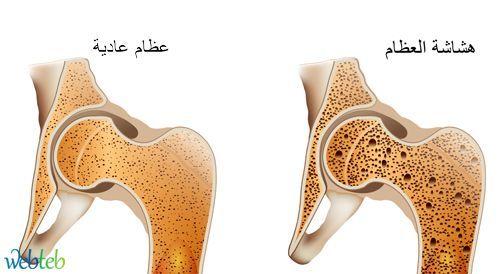 هشاشة العظام،علاج هشاشة العظام، مرض هشاشة العظام