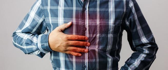حرقة المعدة: الأسباب والأعراض والعلاج