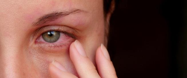 التهاب العين،علاج التهاب العين