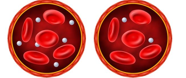 نقص سكر الدم، الاعراض، الاسباب والعلاج