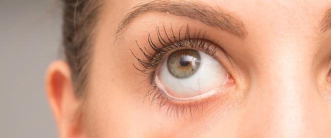 جفاف العين،علاج جفاف العين