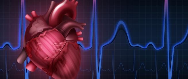 اضطراب نبضات القلب,اضراب ضربات القلب,خفقان القلب