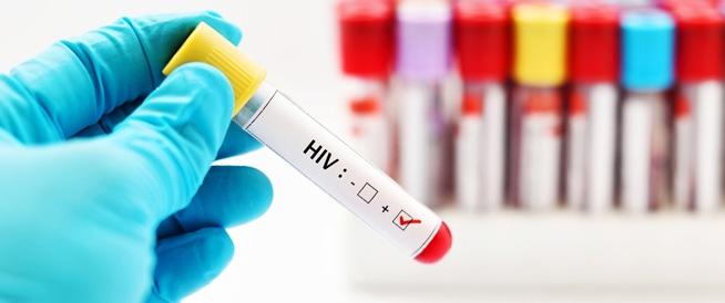 الإيدز: الأسباب والأعراض وطرق العلاج
