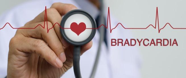 بطء القلب، اعراض، اسباب وعلاج بطء القلب