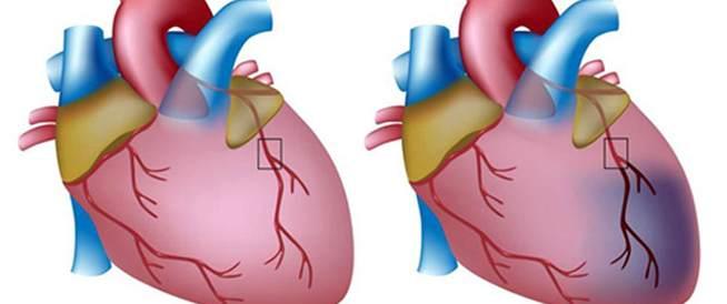 الذبحة الصدرية،علاج الذبحة الصدرية،اسباب الذبحة الصدرية
