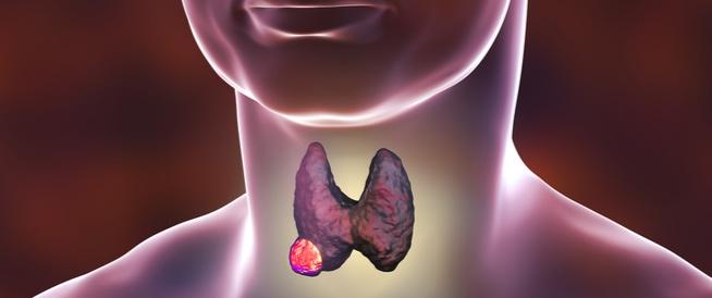 سرطان الغدة الدرقية، اعراض وعلاج سرطان الغدة الدرقية