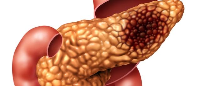 سرطان البنكرياس،اعراض وعلاج سرطان البنكرياس