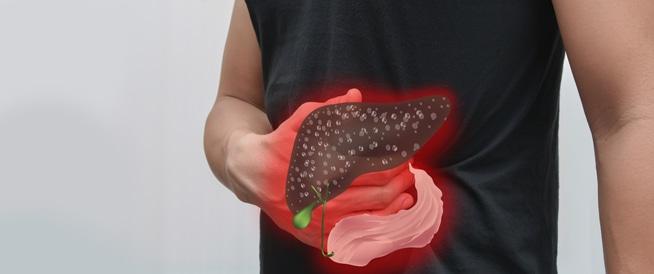 التهاب الكبد ب،: الأعراض، الأسباب والعلاج