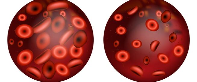 فقر الدم الاعراض، الاأسباب والعلاج