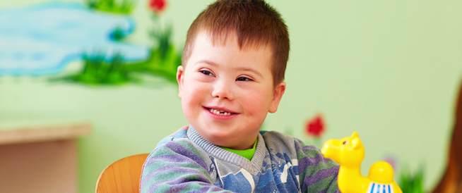 متلازمة داون،اسباب وعلاج متلازمة داون