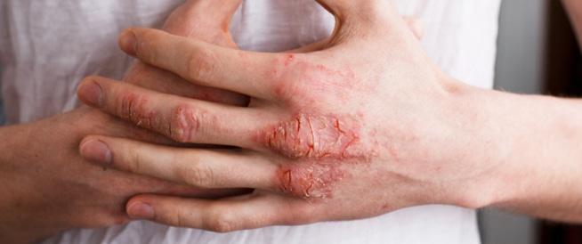الاكزيما، علاج الاكزيما والاعراض