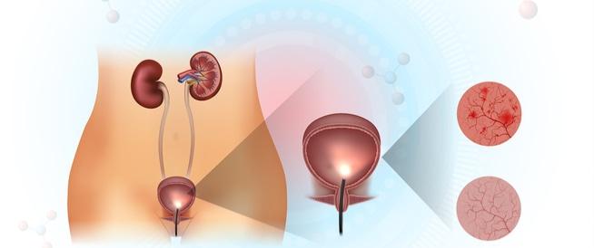 التهاب المثانة علاج التهاب المثانة ويب طب