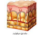 السيلوليت: اسباب اعراض وعلاج