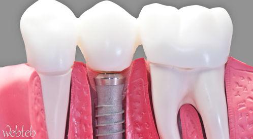 زراعة الاسنان: الأطقم الصناعية والجسور