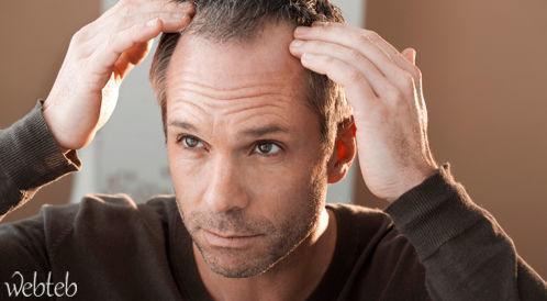 الأسباب النفسيّة لتساقط الشعر