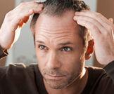 الحالة النفسية وتساقط الشعر