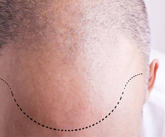 عمليات جراحية لزيادة نمو الشعر