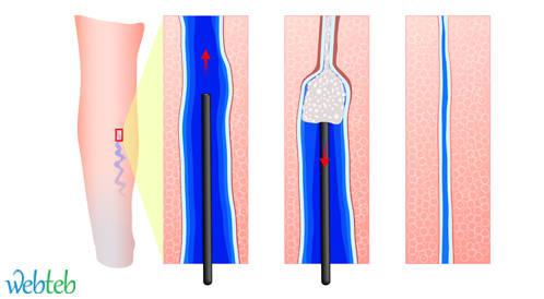 علاج دوالي الساقين والشعيرات الدموية