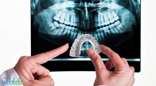 علاج صك وصرير الأسنان