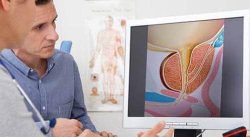 أسئلة عن فرط نشاط المثانة يجب أن تطرحها على طبيبك
