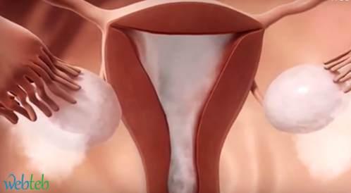 فحص الرحم وقنوات فالوب لتقييم الخصوبة عند النساء