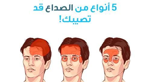 5 أنواع من الصداع قد تصيبك!