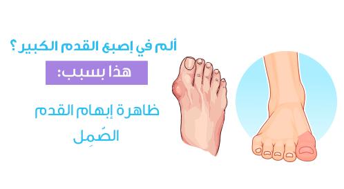 ماذا تقول قدميك عن صحتك؟