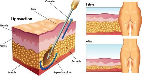 ماذا تعرف عن عملية شفط الدهون؟