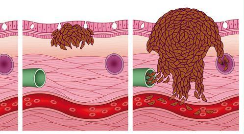 شاهدوا بالفيديو: الميلانوما - المراحل المبكرة والمراحل المتقدمة